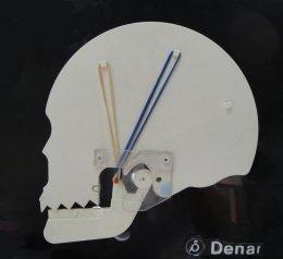 Àrea d'Odontologia i Cirurgia Oral i Maxil·lofacial - ATM