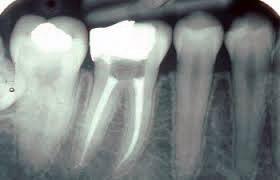 Àrea d'Odontologia i Cirurgia Oral i Maxil·lofacial - Endodòncia