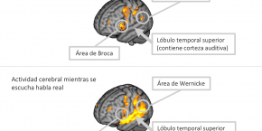 L'Hospital participa en una investigació sobre les al·lucinacions dels pacients amb esquizofrènia